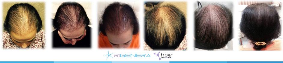 medicina rigenerativa capelli